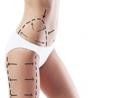 Latest Liposuction Techniques