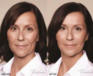 before - after dermal fillers