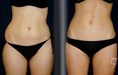 summing up liposuction treatments