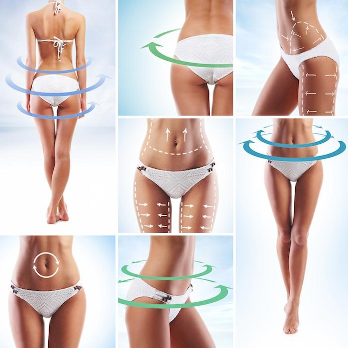 what is vaser liposuction
