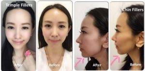 Elaine Heng on Cosmetic Fillers