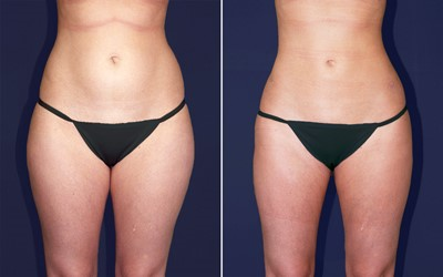 liposuction treatments