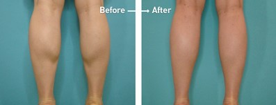 calf liposuction result before after