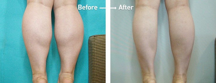 calf liposuction before and after