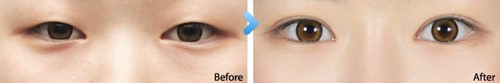 before and after photo eyelid surgery