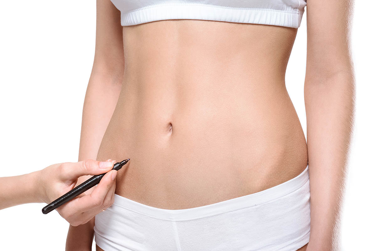 liposuction surgeon marking incision site on belly